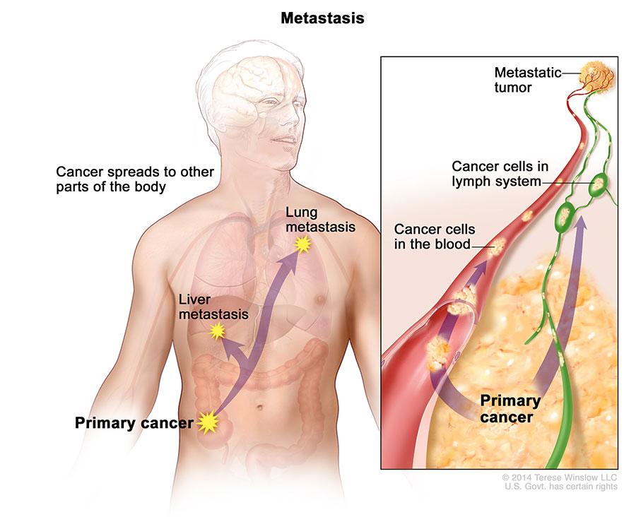 Varice ale esofagului și a stomacului eseu