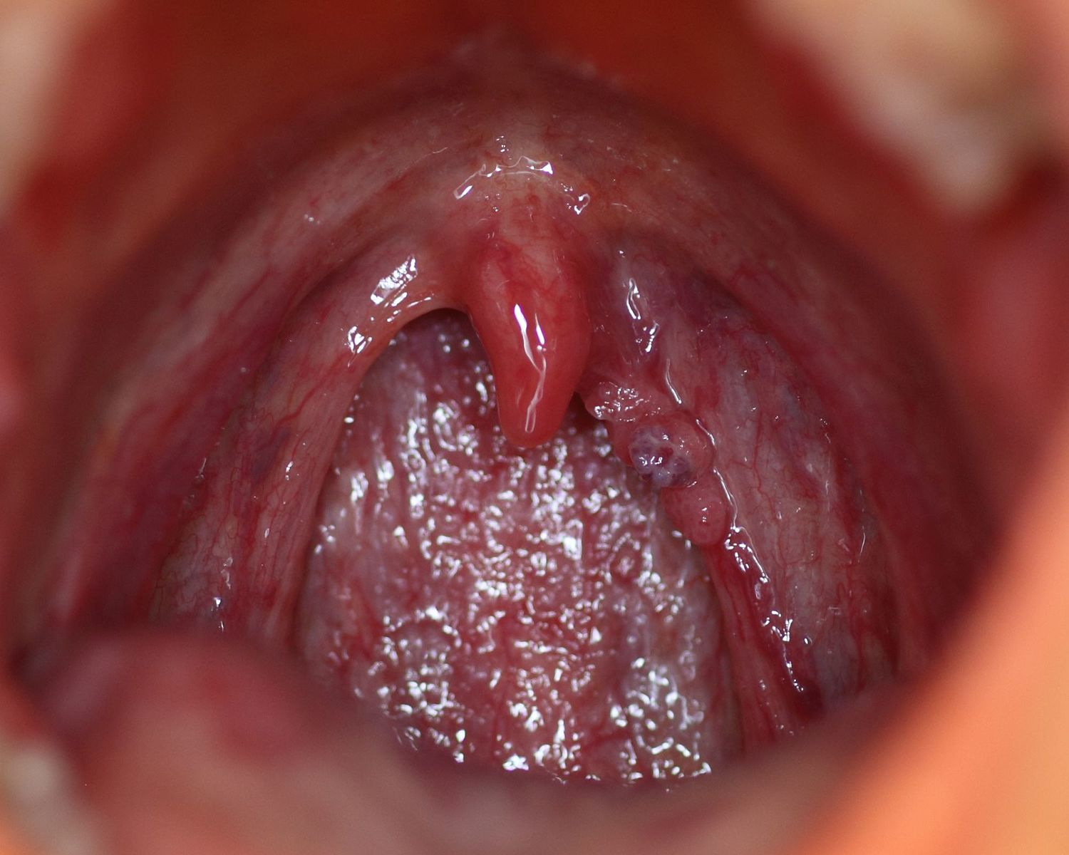hpv mouth symptoms pictures