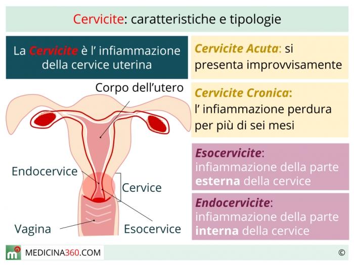 DIATERMOCOAGULAZIONE - Definiția și sinonimele diatermocoagulazione în dicționarul Italiană