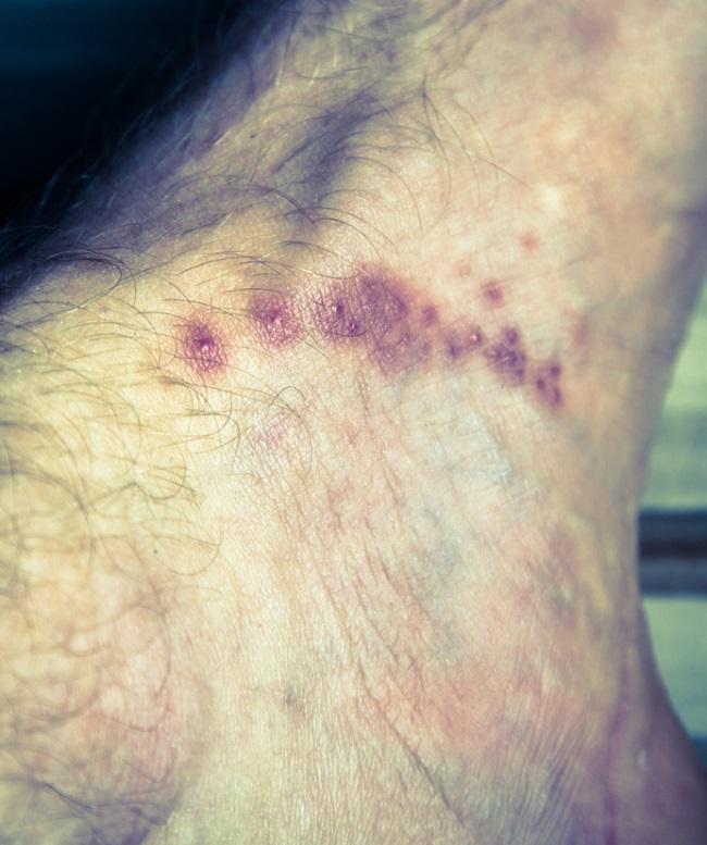 respiratory papillomatosis laryngoscopy human papillomavirus on knee