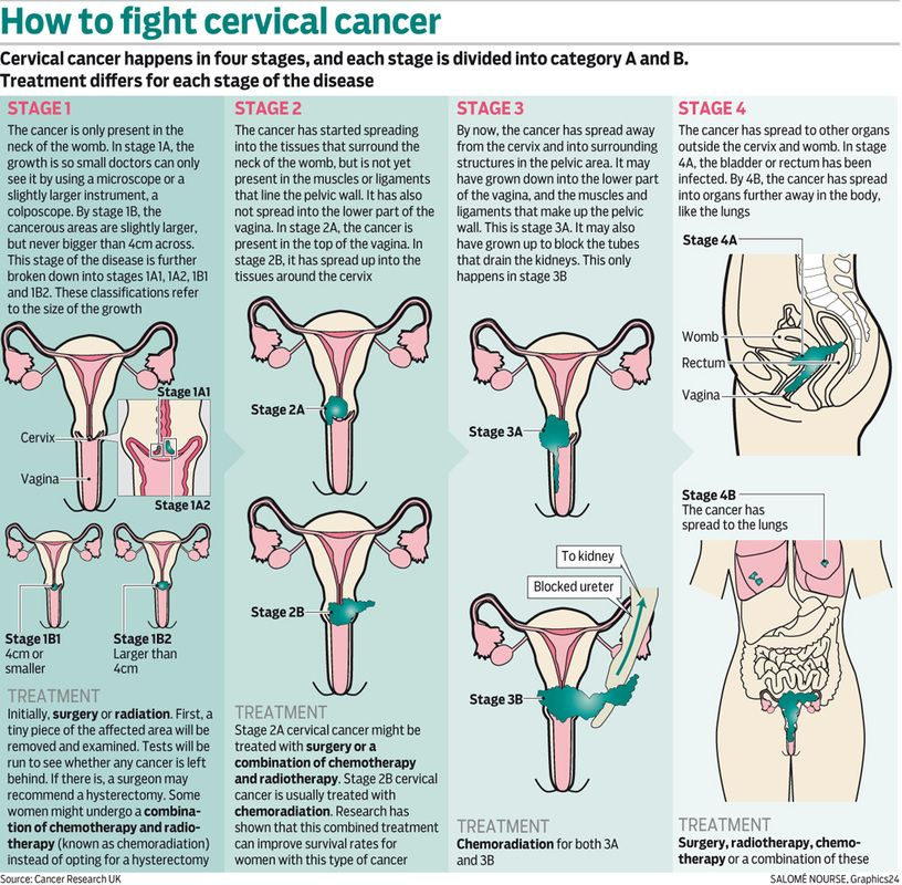 cervical cancer is curable