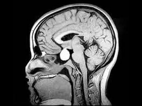 human papilloma virus signs and symptoms hpv is genital warts
