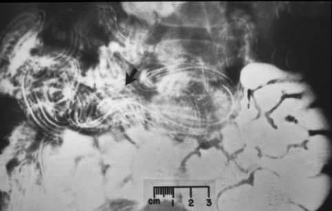 Opisthorchiasis. bothriocephaliasis