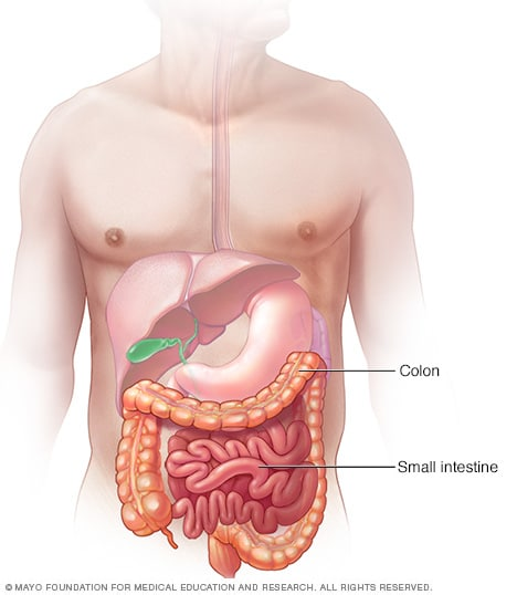 cancer colon blockage parazitii unde se termina visele