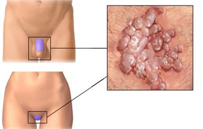 parazitoze intestinale papilloma virus tempo di contagio