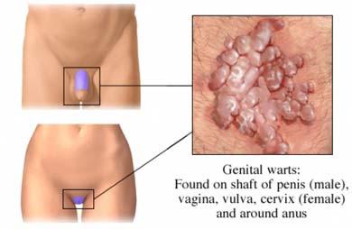 papiloma virus en el hombre papilloma virus periodo di incubazione