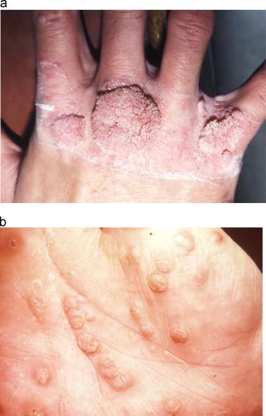 hpv skin disease