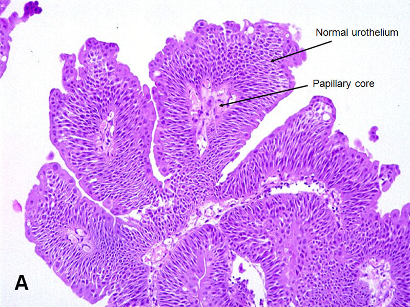 papilloma of bladder