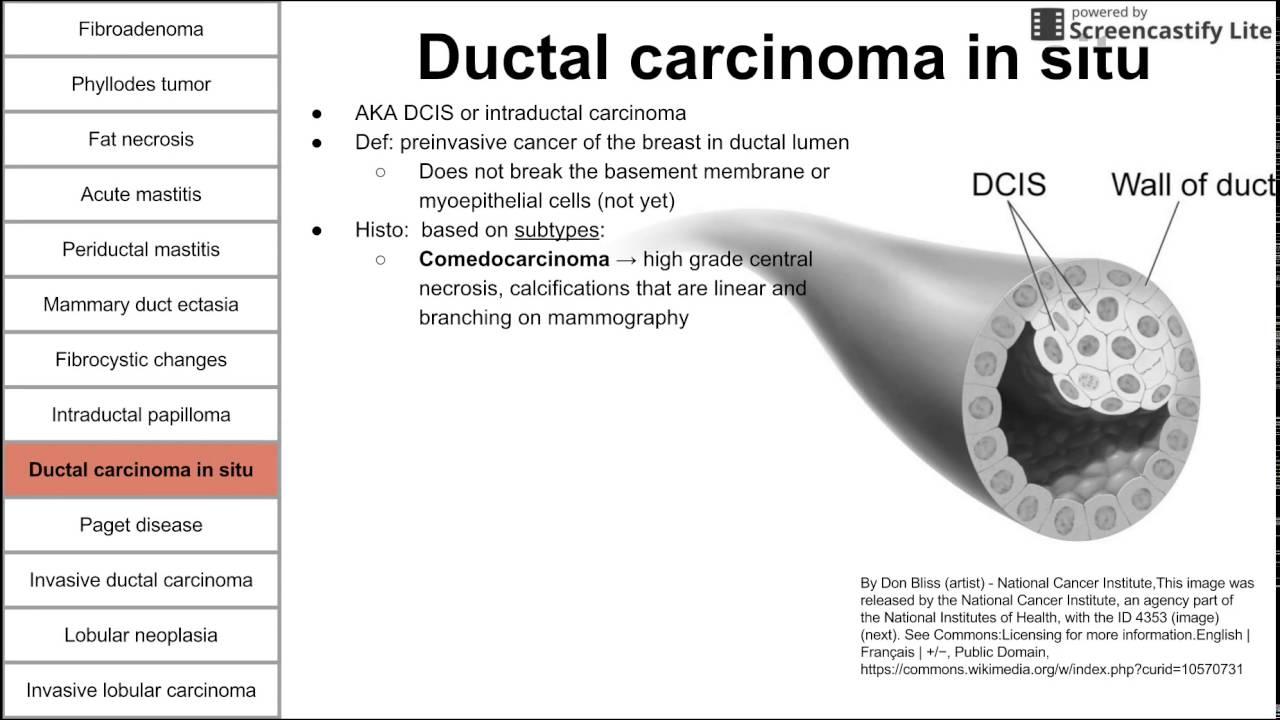 papillary thyroid cancer oncocytic variant