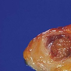 intraductal papilloma gross