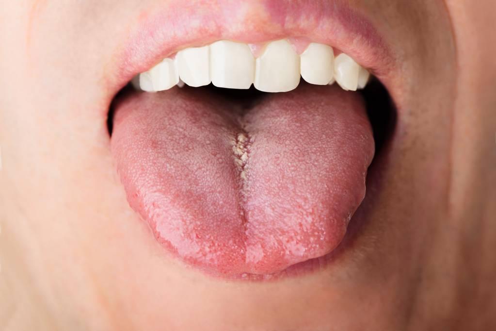papillom entfernen mund enterobius vermicularis pronounce