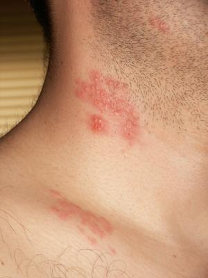 hpv virus type 16 tratamiento oxiuros ninos 2 anos