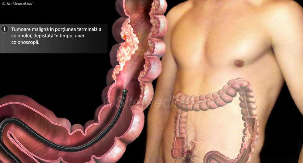 Semne și simptome cancer | Cancer