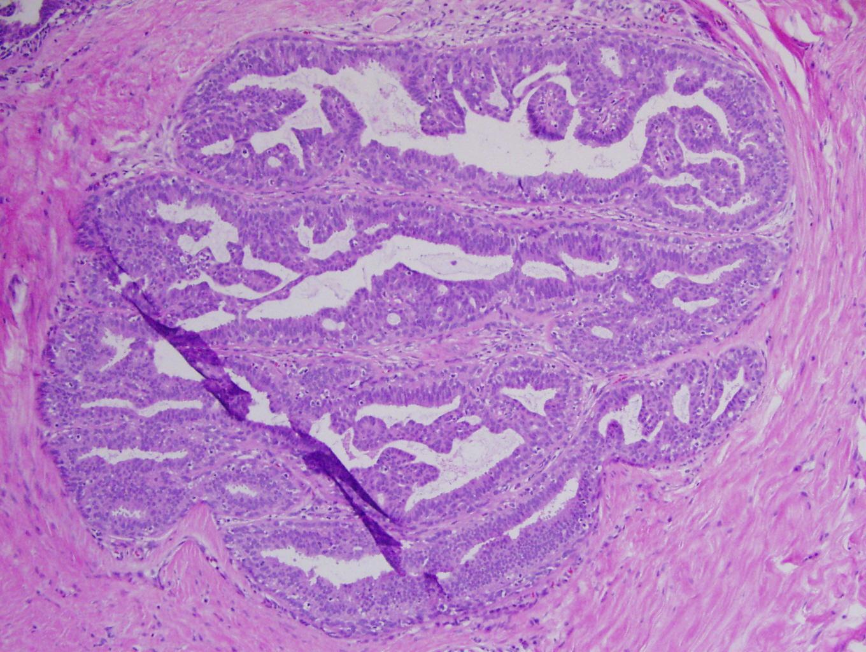 condyloma acuminata biopsy