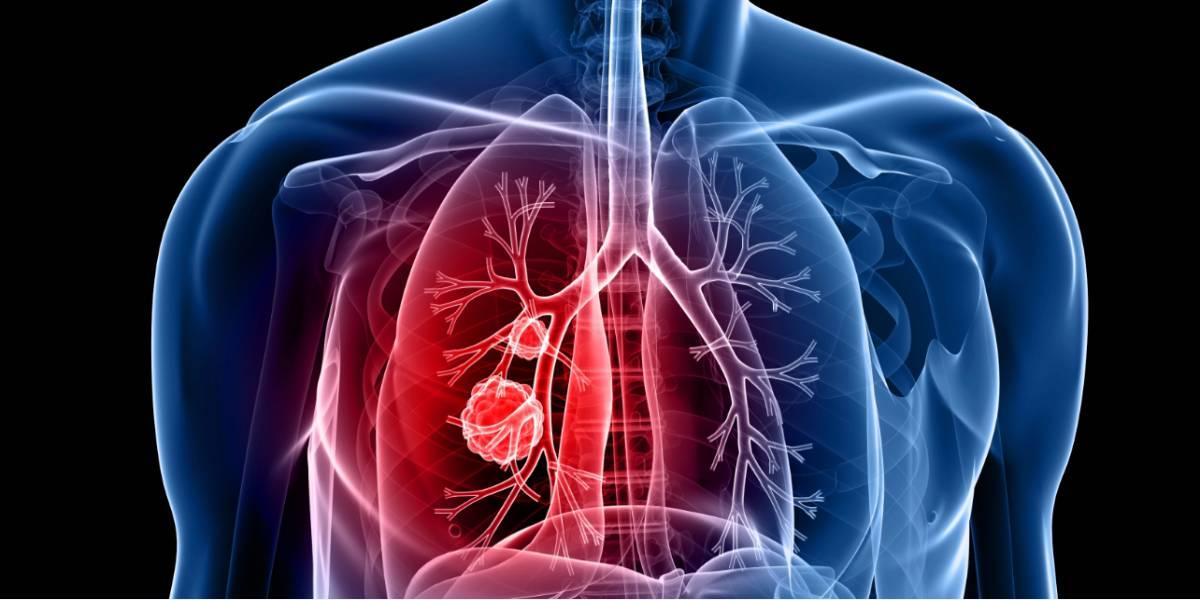 Cancerul bronhopulmonar fara celule mici