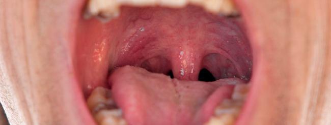 papiloma humano boca sintomas