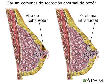 papillomas papilloma histology skin