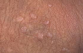 virus papiloma humano tratamiento homeopatico papilloma formation definition