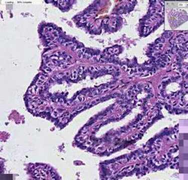 papillomatosis breast histology