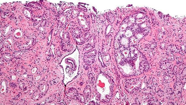 Cancerul la prostată: cele mai noi tratamente