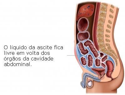PERITÔNIO - Definiția și sinonimele peritônio în dicționarul Portugheză