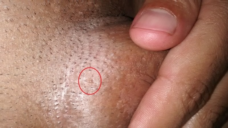 oxiurus verme tratamento vaccin hpv pour garcon