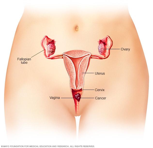 Cancerul vulvar - semne, cauze si tratament - Cancer
