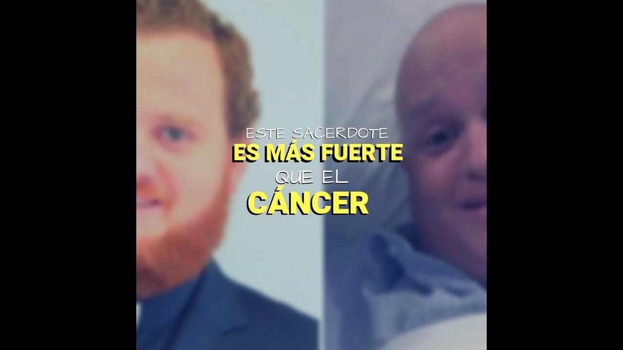 cancer facial que es
