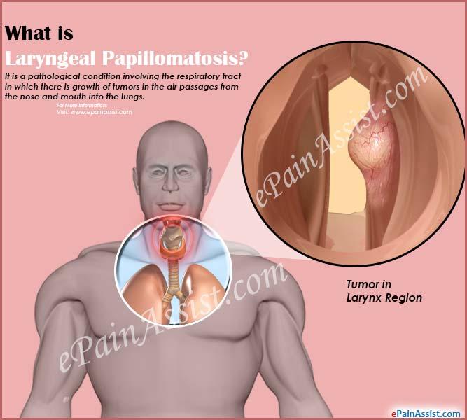 papillomatosis larynx treatment