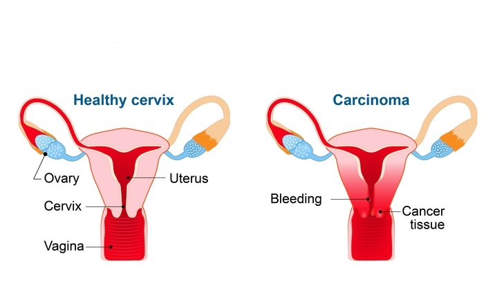 hpv that causes abnormal cells