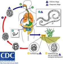 virus de papiloma humano boca sintomas papillary thyroid cancer nursing care plan