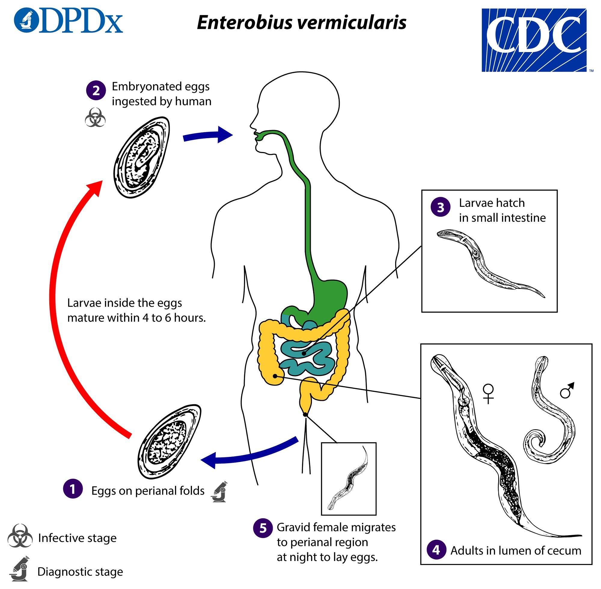 enterobius vermicularis hembra y macho papilloma virus bambina