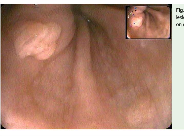 esophageal papilloma endoscopy squamous papilloma areola