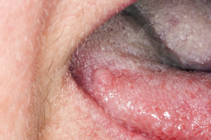 can squamous papilloma become cancerous