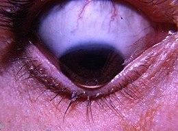 enterobius vermicularis tedavi