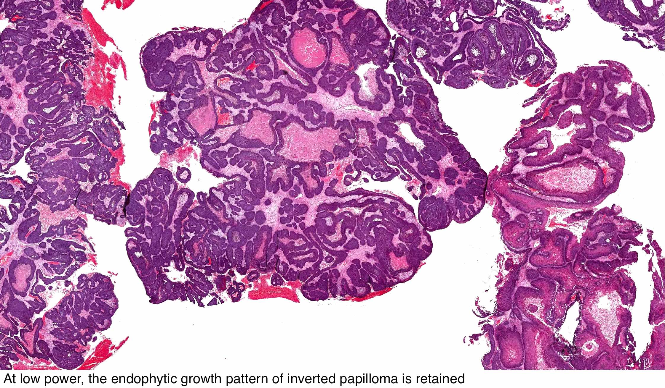 tracheal papilloma pathology