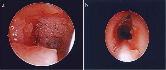 respiratory papillomatosis remission