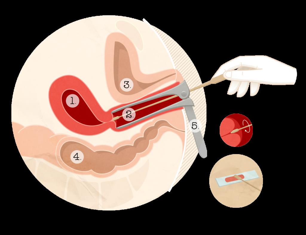 Control ginecologic | FEMME BOUTIQUE MEDICAL
