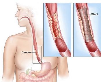 cancer de esofag simptome