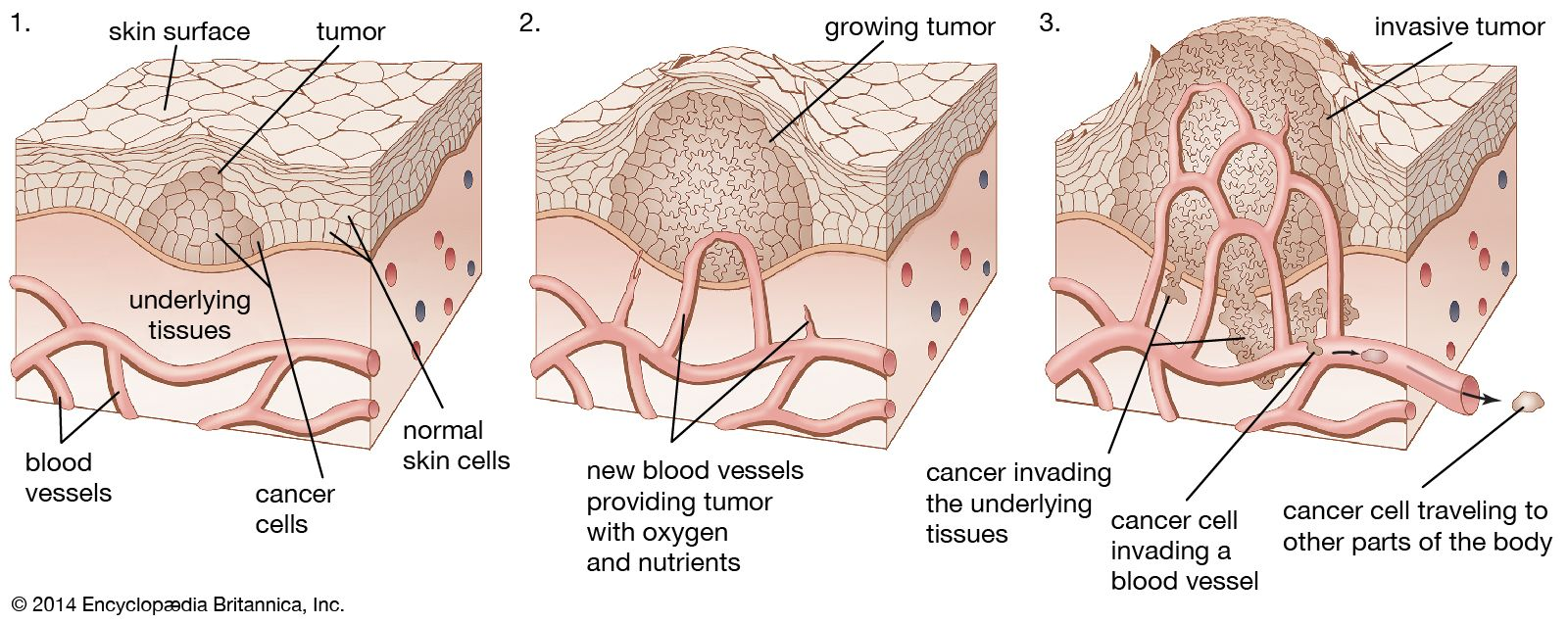 benign cancer of blood vessels pancreatic cancer yellow diarrhea