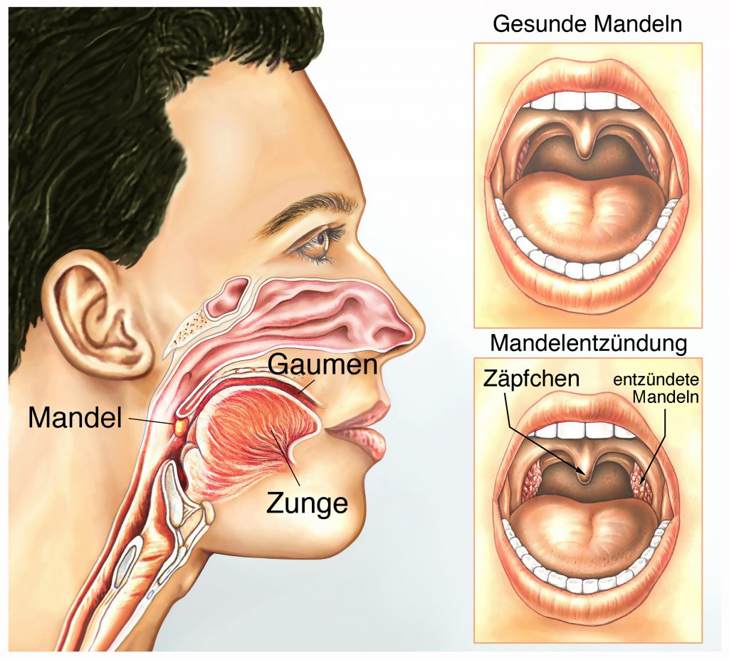 Cum să scapi de papilomii din jurul gâtului: tactici de tratament