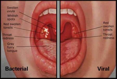 hpv virus keelpijn