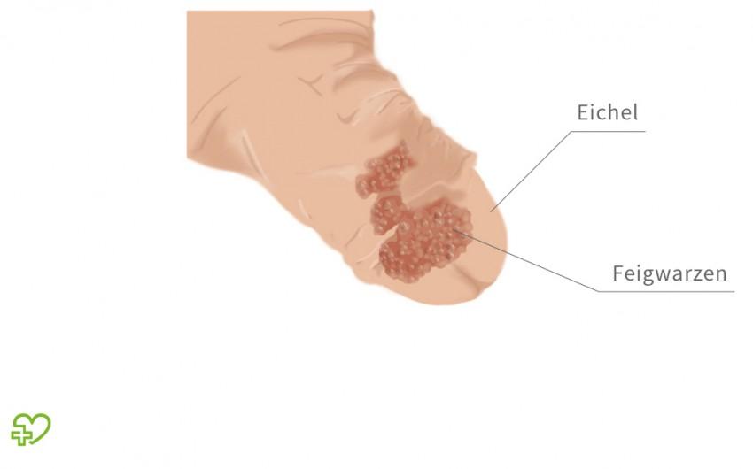 hpv virus symptome mann papiloma laringeo gpc