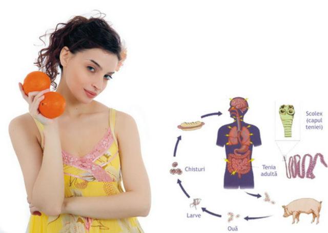 homeopate pentru paraziti intestinali hpv femme operation