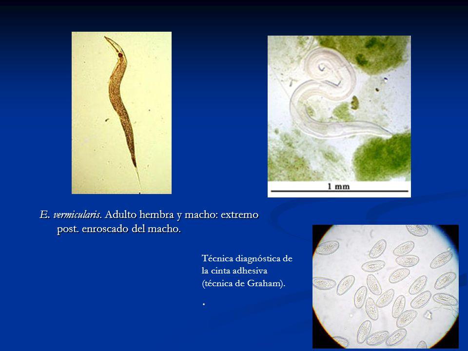 intraductal papilloma and papillomatosis oxiuros adulto