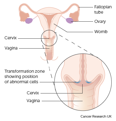 benign cancer progression