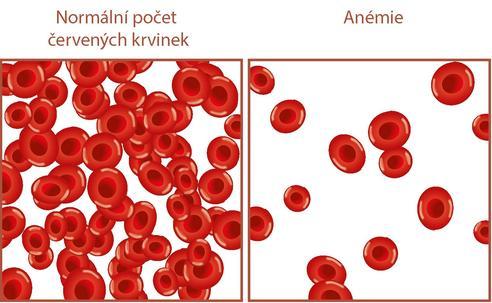 anemie v prvnim trimestru cancer e contagios