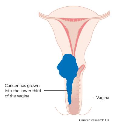 cervical cancer research oxiuri ficat