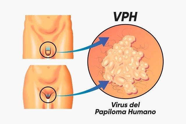 virus papiloma humano mujeres sintomas