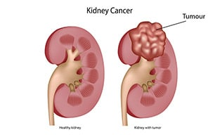 cancer renal stadiul 4 cancer testicule velo
